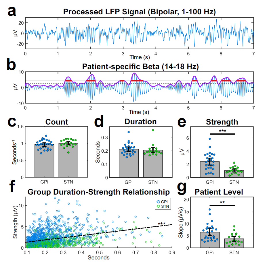 Graphs detailing: Processed LFP Signal; Patient-specific beta; count; duration; strength; and patient level