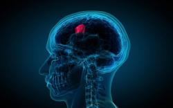 Brain scan highlighting cnacer