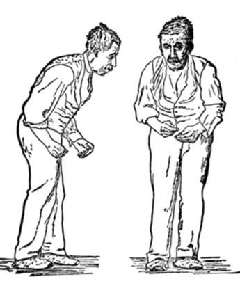 Old Parkinson's Image of an old frail man